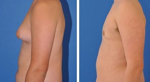 Một trong những triệu chứng của cường giáp mà chỉ ảnh hưởng đến đàn ông là sự phát triển bất thường của vú - gynecomastia.