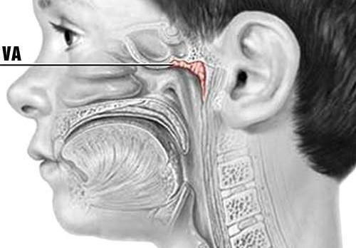 Tùy sự nhạy cảm của hệ miễn dịch của trẻ, VA có thể bị viêm và có các triệu chứng nghẹt mũi, khó thở...