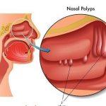 Điều trị polyp mũi