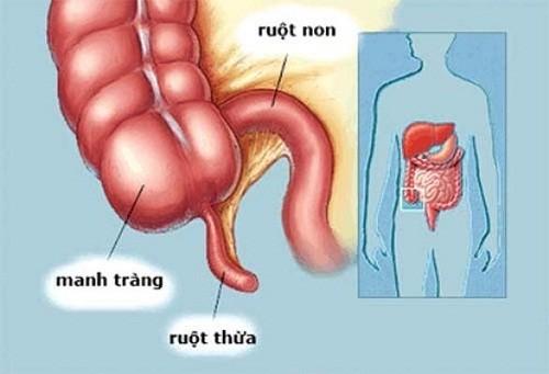 hiện tượng đau ruột thừa