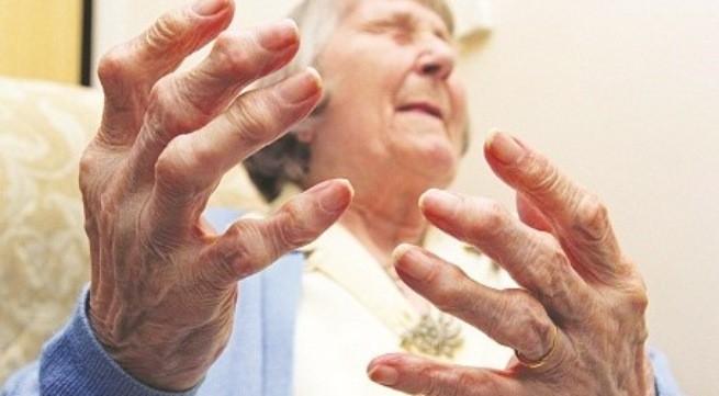 Viêm khớp dạng thấp cần được phát hiện và điều trị sớm.