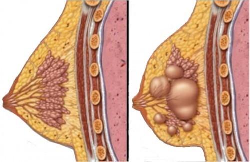 Nang tuyến vú là một bệnh lý thường gặp ở nhiều phụ nữ.