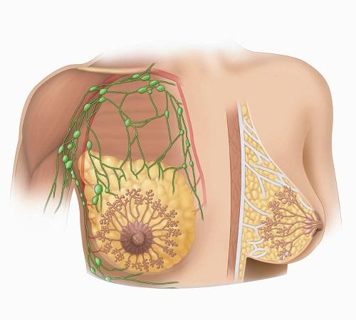 Phẫu thuật bóc tách nang vú là một biện pháp hiệu quả trong điều trị nang vú phát triển bất thường ở nữ giới.