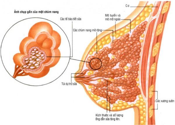 U nang vú là túi chứa đầy dịch trong vòng ngực, có thể có một hay nhiều u nang vú.