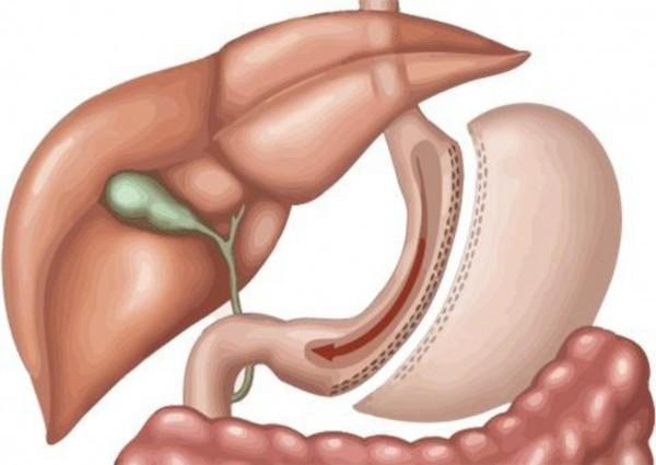 Phẫu thuật cắt dạ dày là cắt bỏ một phần hoặc toàn bộ dạ dày.