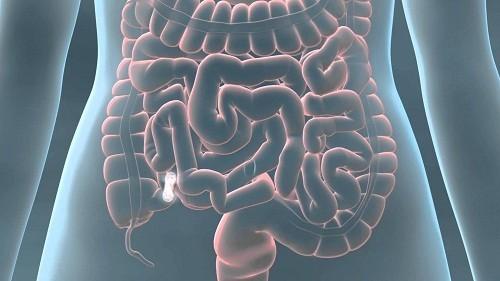 Tắc ruột là một hội chứng do việc ngừng lưu thông của hơi và dịch tiêu hoá trong lòng ruột gây ra.