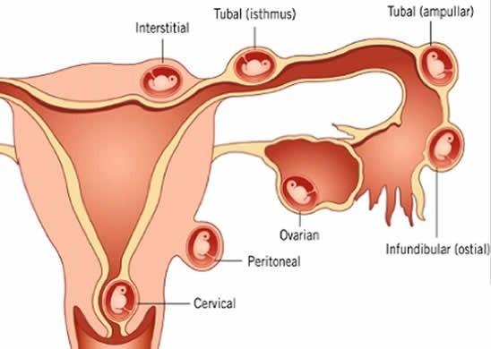 Chửa ngoài tử cung là hiện tượng thai nhi nằm ngoài dạ con