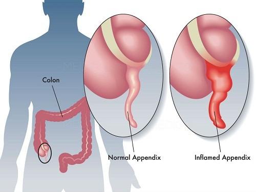 Bệnh viêm ruột thừa (đau ruột thừa) là hiện tượng phần ruột thừa bị viêm và lên mủ, dẫn đến việc đau, khó chịu cho người bệnh.