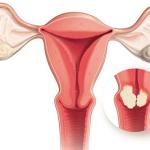 Polyp cổ tử cung và những điều cần biết