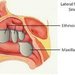 Polyp mũi tái phát