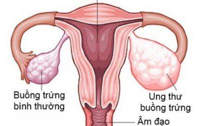 Siêu âm buồng trứng có phát hiện được ung thư không?