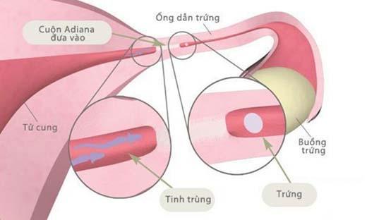 Để chẩn đoán bạn có bị tắc ống dẫn trứng hay không cần phải tiến hành chụp ống dẫn trứng, siêu âm…