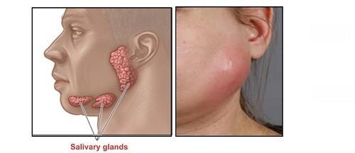 Đỏ và sưng ở hàm phía trước tai, dưới hàm hoặc trên cùng của miệng là triệu chứng viêm tuyến nước bọt mà người bệnh thường gặp.