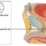 Cách xử trí u xơ tuyến tiền liệt