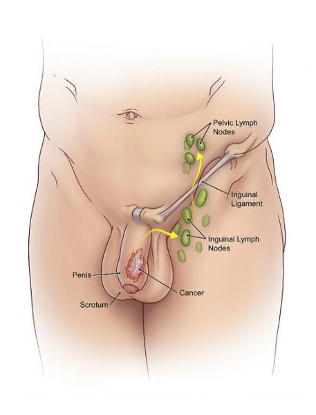 Ung thư dương vật là một loại ung thư hiếm gặp xảy ra trên da của dương vật hoặc trong dương vật