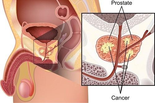 Ung thư tuyến tiền liệt là bệnh ung thư thường gặp nhất ở nam giới.
