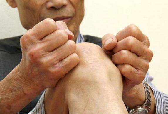 Viêm khớp dạng thấp là bệnh thường gặp ở nhiều người.