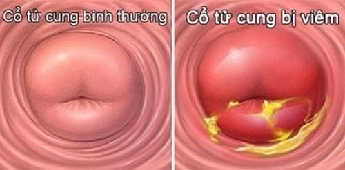Viêm cổ tử cung nếu không chữa trị có thể dẫn đến ung thư tử cung.