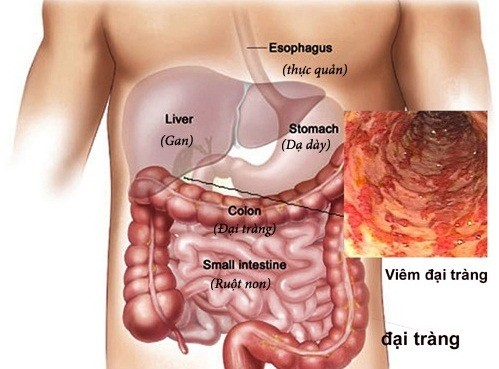 Bệnh viêm loét đại tràng chảy máu có 3 thể: thể nhẹ, thể trung bình và thể nặng.