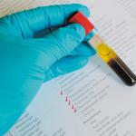Xét nghiệm hormone tuyến giáp