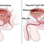 Khi nào thì nên mổ u xơ tuyến tiền liệt?
