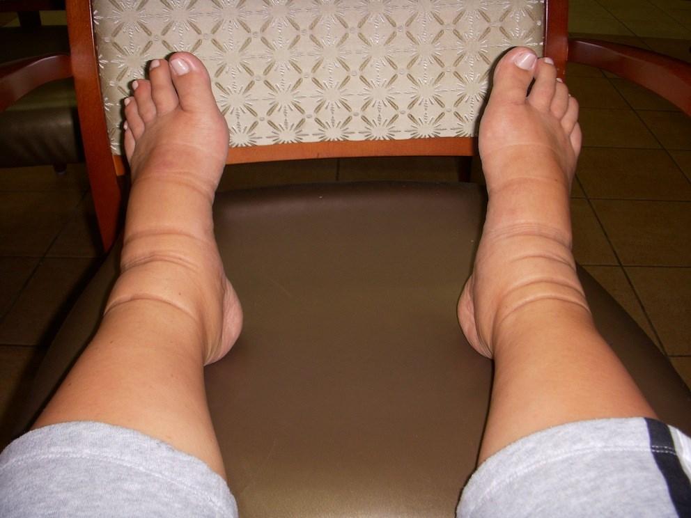Phù chân khi mang thai có hai dạng là phù sinh lý và phù bệnh lý.