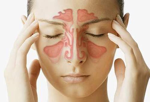 Viêm xoang cấp là do nhiễm virut cảm lạnh thông thường hoặc sau khi bị nhiễm lạnh, do nhiễm khuẩn đường hô hấp trên, nhiễm nấm