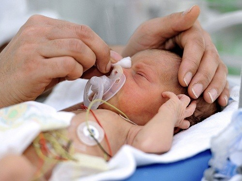 Ảnh hưởng của hội chứng buồng trứng đa nang đến thai kỳ