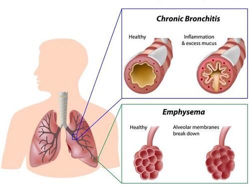 Bệnh giãn phế quản do viêm hay nhiễm khuẩn đường hô hấp tái đi tái lại gây hoại tử thành phế quản
