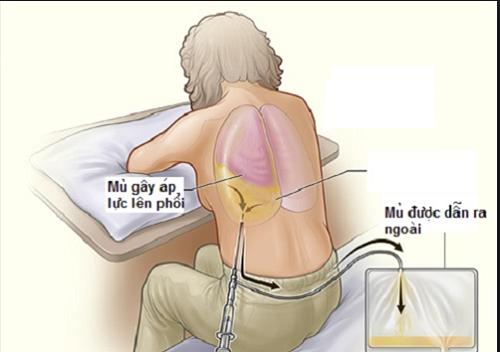 Để chẩn đoán lao màng phổi cần hút dịch màng phổi ra ngoài để tìm vi khuẩn lao.