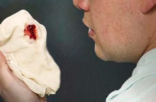 Ho, ho ra máu, khạc ra nhiều đờm...là những biểu hiện thường gặp khi bị lao phổi