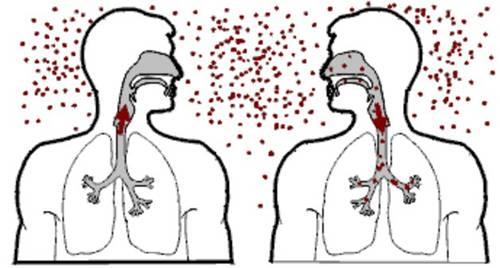 Bệnh lao lây truyền qua đường hô hấp khi người bệnh ho, hắt hơi...
