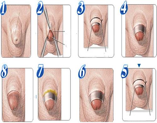 Cắt bao quy đầu ở trẻ em là một thủ thuật giúp loại bỏ phần da bao quy đầu dài và hẹp, không tự tụt xuống