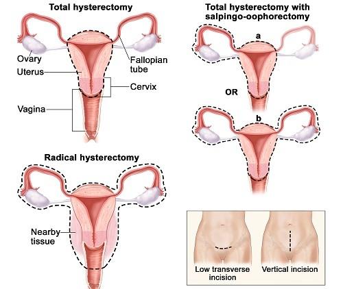 Cắt bỏ tử cung do nhiều lý do nhưng đều có sự chỉ định cụ thể của bác sĩ