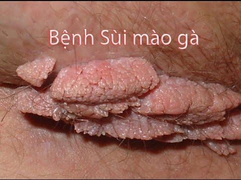 chua-sui-mao-ga-o-dau-ha-noi-tot