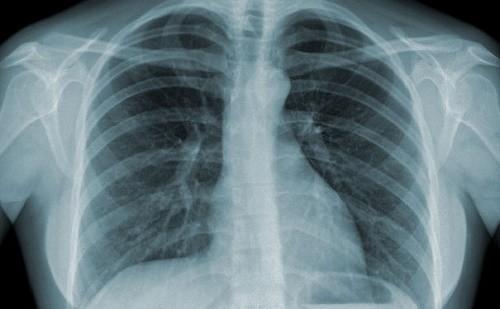 Chụp X-quang được sử dụng nhiều trong y học giúp chẩn đoán các bệnh bên trong cơ thể về tim mạch, xương khớp...