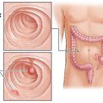 Có nên cắt polyp đại tràng không?