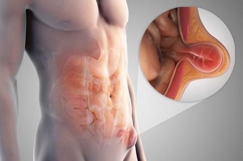 Thoát vị bẹn xuất hiện khi có khối phồng lên ở vùng bẹn, thường diễn ra từ từ, cảm giác đau, nặng và khó chịu ở vùng bẹn.