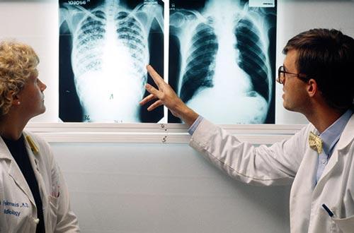 Có nhiều người khi chụp phim phổi tình cờ phát hiện có tổn thương xơ, di chứng của lao trước đó đã tự khỏi.