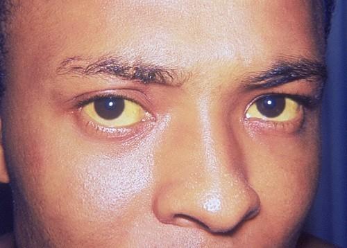 Vàng da (da và tròng trắng mắt chuyển màu vàng) là dấu hiệu cho thấy men gan tăng cao.