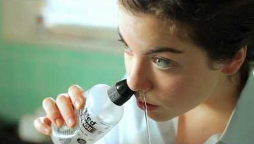Sau khi mổ polyp mũi cần vệ sinh mũi hàng ngày bằng nước muối sinh lý