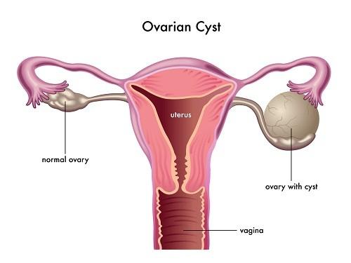 U nang buồng trứng là bệnh thường gặp ở chị em phụ nữ, ảnh hưởng tới sức khỏe sinh sản