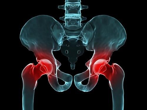 Có nhiều nguyên nhân gây đau khớp háng như thoái hóa khớp, viêm khớp dạng thấp, hoại tử vô khuẩn chỏm xương đùi...