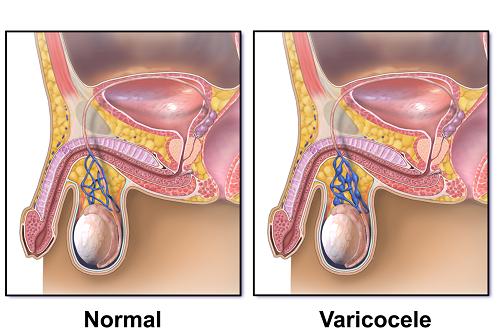 Giãn tĩnh mạch thừng tinh thường xuất hiện quanh tinh hoàn trái với tỷ lệ trên 80%.