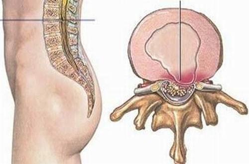 Thoát vị đĩa đệm là tình trạng cấu trúc đĩa đệm phình ra gây chèn ép vào các cấu trúc lân cận, biểu hiện là đau vùng thắt lưng