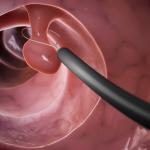 Polyp cổ tử cung là bệnh gì?