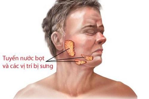 Viêm tuyến nước bọt thường không lây lan thành dịch như bệnh quai bị
