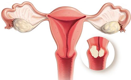Polyp cổ tử cung cần phải được phẫu thuật kịp thời nhằm loại bỏ nhanh chóng bệnh