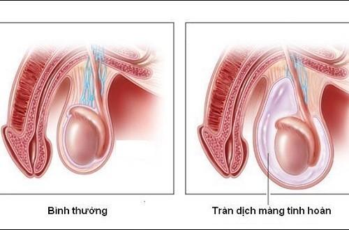 Tràn dịch màng tinh hoàn ở người lớn do nhiều nguyên nhân gây ra như nhiễm trùng, mắc các bệnh lý về tinh hoàn...