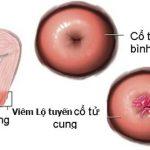 Viêm lộ tuyến có gây khó thụ thai?